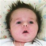 Света Тугарева, несовершенный остеогенез, требуется курсовое лечение, 527310 руб.