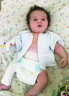 Света Тугарева, 6 месяцев, несовершенный остеогенез, требуется курсовое лечение. 527310 руб.