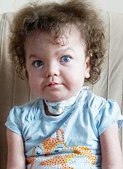 Маша Кирюхина, 3 года, редкое генетическое заболевание – мукополисахаридоз 1-го типа, синдром Гурлер, состояние после трансплантации костного мозга, спасет лекарство. 384307 руб.