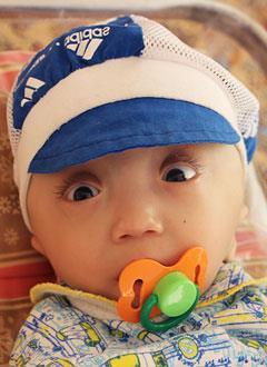 Никита Петрин, 1 год, гидроцефалия – водянка головного мозга, требуется программируемая шунтирующая система. 154602 руб.