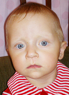 Катя Мурзич, 1 год, врожденный порок сердца, спасет операция, требуется протез легочной артерии. 206150 руб.