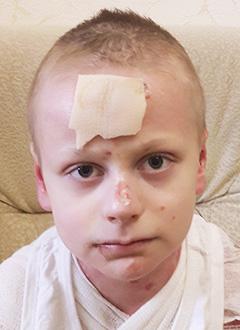 Рома Кушманов, 10 лет, врожденный буллезный эпидермолиз, дистрофическая тяжелая форма, требуется лечение. 909241 руб.