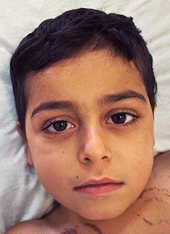 Юсиф Юсиф, 7 лет, острый лимфобластный лейкоз, спасет химиотерапия. 1519000 руб.