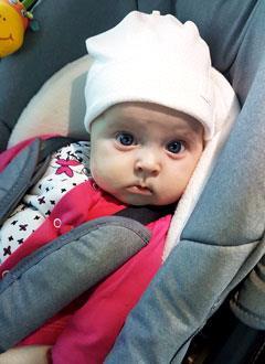 Алиса Ковалева, 7 месяцев, деформация черепа, требуется послеоперационное лечение специальными шлемами. 180000 руб.