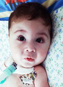 Ибрагим Оруджов, 1 год, спинальная мышечная атрофия, спасет аппарат искусственной вентиляции легких и расходные материалы к нему. 1718122 руб.