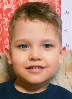 Алеша Скаредин, 3 года, двусторонняя хроническая сенсоневральная тугоухость 3-й степени, требуются слуховые аппараты. 229044 руб.