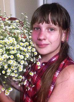 Настя Быконя, 11 лет, мальформация кровеносных сосудов лица и слизистой нёба, требуется лечение. 300000 руб.