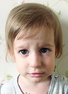 Настя Чечкова, 4 года, врожденный порок сердца, спасет операция. 392716 руб.