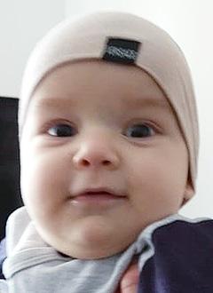 Мухаммад-Али Кодзоев, 5 месяцев, деформация черепа, требуется послеоперационное лечение специальными шлемами. 180000 руб.