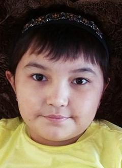 Захро Рахматиллаева, 8 лет, термический ожог, требуется лечение. 39754 руб.