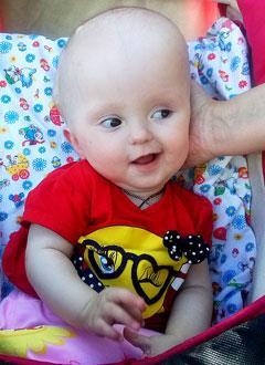 Катя Гирчева, 9 месяцев, деформация черепа, требуется лечение специальными шлемами. 180000 руб.