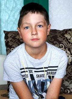 Вова Кыштымов, 10 лет, последствия тяжелой черепно-мозговой травмы, спасет реконструктивная операция, требуется биоимплант. 954800 руб.