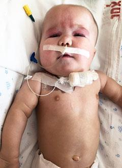 Алевтина Албовк, 10 месяцев, синдром Патау, дыхательная недостаточность 3-й степени, требуется переносной аппарат искусственной вентиляции легких (ИВЛ) и расходные материалы к нему. 1607493 руб.