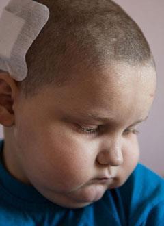 Саша Боев, 6 лет, диффузная (злокачественная) опухоль головного мозга, спасет лучевая терапия. 947314 руб.