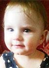 Ясмина Никитина, 1 год, несовершенный остеогенез, требуется курсовое лечение. 139510 руб.