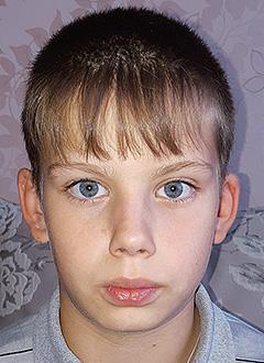 Дима Келиверде, 12 лет, двусторонняя тугоухость 2-й степени, требуются слуховые аппараты. 134974 руб.