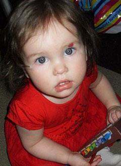 Соня Трясцина, полтора года, врожденный гиперинсулинизм, спасет лекарство. 69983 руб.