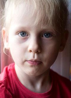 Ксюша Митенева, 4 года, послеожоговые рубцы, требуется этапное хирургическое лечение. 824600 руб.