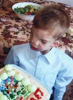 Арсений Васьков, 6 лет, синдром Гольденхара – поперечная расщелина лица, недоразвитие челюстей, сужение зубных рядов, требуется лечение. 466000 руб.