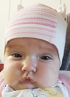 Лера Кортунова, 3 месяца, тяжелый врожденный порок сердца, спасет операция. 512240 руб.