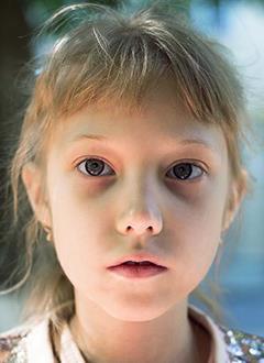 Вика Диденко, 9 лет, муковисцидоз, легочно-кишечная форма, спасет лекарство. 361700 руб.