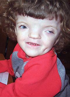 Алевтина Приходько, 4 года, деформация черепа, орбитальный гипертелоризм (широко расставленные глазницы), требуется операция. 740000 руб.