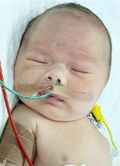 Никита Чичерин, 6 дней, тяжелый врожденный порок сердца, спасет операция. 651000 руб.