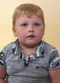 Миша Тарасов, 4 года, состояние после трепанации черепа, спасет операция, требуются расходные материалы. 406875 руб.