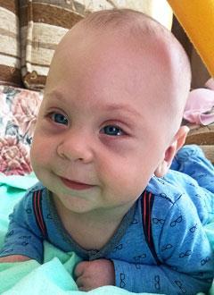 Мирослав Будков, 7 месяцев, деформация черепа, спасет операция, требуется подготовка к ней и саморассасывающиеся пластины. 690000 руб.