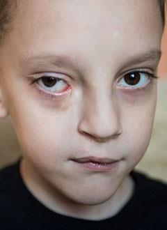 Андрей Кукушкин, 8 лет, скрытая косая расщелина лица, воспаление слезного мешка, спасет хирургическое и ортодонтическое лечение. 916000 руб.
