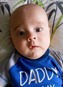 Матвей Ливицкий, 8 месяцев, деформация черепа, спасет операция, требуется подготовка к ней исаморассасывающиеся пластины. 690000 руб.