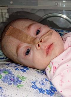 Полина Ельцова, 8 месяцев, кишечная непроходимость, синдром короткой кишки, спасет операция. 651000 руб.