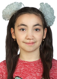 Даша Купряева, 10 лет, врожденная односторонняя расщелина нёба и верхней губы, требуется операция. 105701 руб.
