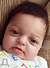 Таня Сагирян, 1 год, синдром Крузона, деформация черепа, спасет операция, требуется подготовка к ней и компрессионно-дистракционные аппараты. 690000 руб.