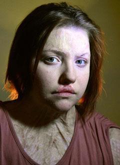 Лера Мигунова, 17 лет, последствия тяжелых ожогов и комбинированных травм, приводящая контрактура правого плечевого сустава, спасет операция, требуется эндопротез плечевого сустава. 297364 руб.