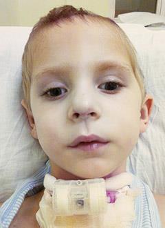 Клим Ковалев, 3 года, состояние после трепанации черепа, спасет операция, требуется имплантат. 556768 руб.