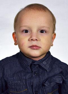 Артем Черняков, 2 года, постожоговая рубцовая стриктура (сужение) пищевода, спасет операция, требуется стент. 161665 руб.