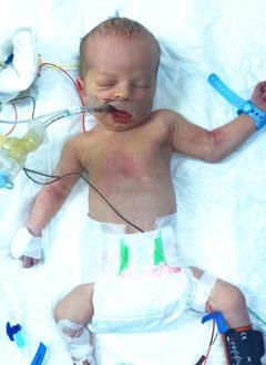 Слава Мазурецкий, 7 дней, органическое поражение коронарной артерии, спасет операция. 545250 руб.