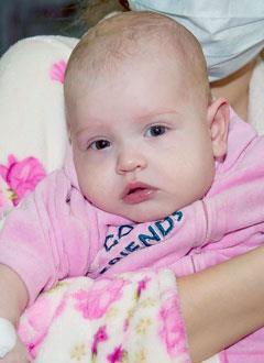 Ева Беляева, 4 месяца, врожденный порок сердца, критическая коарктация (сужение) аорты, спасет операция. 2991 руб.