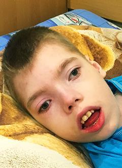 Стас Иванцов, 16 лет, органическое поражение центральной нервной системы, эпилепсия, требуется ортопедическое кресло. 156240 руб.