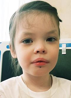 Соня Максимова, 6 лет, врожденный порок развития сосудов, требуется лекарство. 119350 руб.