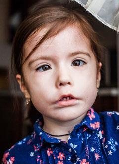 Саша Лузгина, 3 года, синдром Мебиуса – паралич лицевых нервов, спасет операция. 868000 руб.