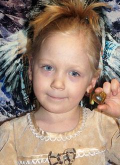 Злата Исаева, 5 лет, гипертрофическая кардиомиопатия (поражение сердечной мышцы), дефект межжелудочковой перегородки, требуется обследование. 48815 руб.
