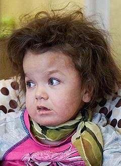 Маша Кирюхина, 3 года, редкое генетическое заболевание – мукополисахаридоз 1-го типа, синдром Гурлер, состояние после трансплантации костного мозга, спасет лекарство. 358339 руб.