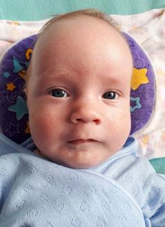 Андрей Садовой, 2 месяца, деформация черепа, требуется лечение специальными шлемами. 180000 руб.