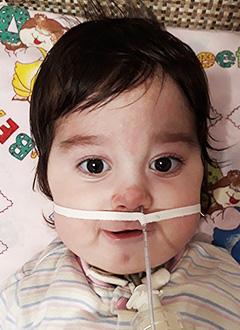 Шахзода Бабаева, 11 месяцев, врожденная мышечная дистрофия Ульриха, требуется откашливатель, аппарат неинвазивной искусственной вентиляции легких и расходные материалы к нему. 1649608 руб.