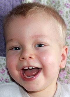 Костя Кораблин, полтора года, тяжелый врожденный порок сердца, спасет эндоваскулярная операция, требуются стенты и специальный баллон. 206048 руб.