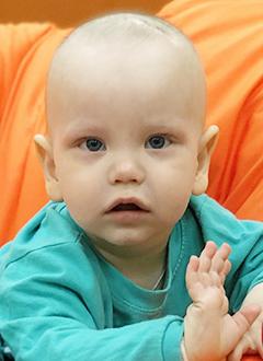 Тёма Клюшин, полтора года, злокачественная опухоль головного мозга, спасет протонная терапия. 1451882 руб.